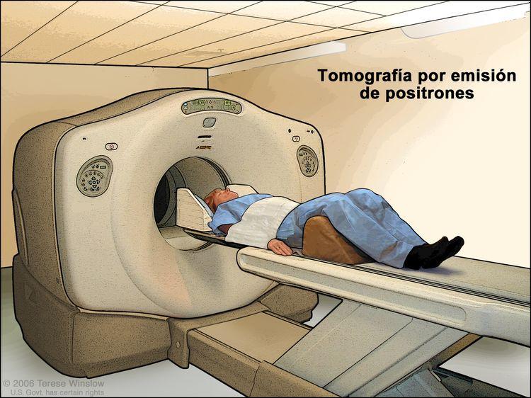 Tomografía por emisión de positrones (TEP). En la imagen se observa a un paciente acostado en una camilla que se desliza a través de una máquina de TEP.