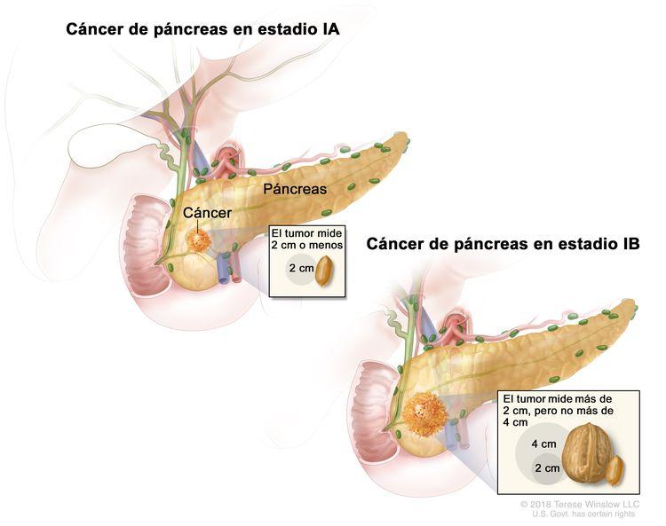 Cáncer de páncreas en estadio l; en la imagen de la izquierda, se observa el cáncer de páncreas en estadio lA. El cáncer está en el páncreas y el tumor mide 2 cm o menos. En el recuadro, se muestra que 2 cm es casi el tamaño de un maní. En el dibujo de la derecha, se observa el cáncer de páncreas en estadio lB. El cáncer está en el páncreas y el tumor mide más de 2 cm, pero no más de 4 cm. En el recuadro, se muestra que 2 cm es casi el tamaño de un maní y que 4 cm es casi el tamaño de una nuez.