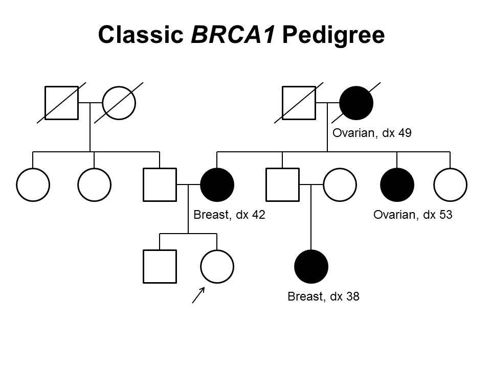母系および父系を通して発生する伝播など、3世代にわたってBRCA1の有害な病原性多様体を有する家系の古典的な特徴の一部を示す家系図。非罹患の女性発端者は、罹患した母親(42歳で乳がんと診断)、女性のいとこ(38歳で乳がんと診断)、母方の叔母(53歳で卵巣がんと診断)、および母方の祖母(49歳で卵巣がんと診断)をもつことが示されている。