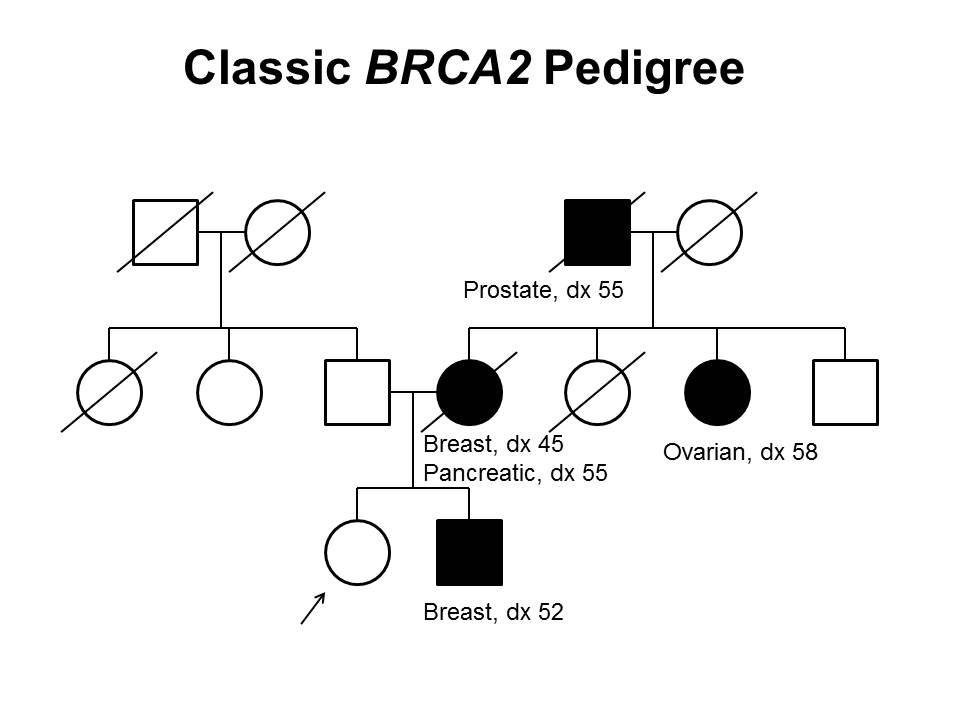 母系および父系を通して発生する伝播など、3世代にわたってBRCA2の有害な病原性多様体を有する家系の古典的な特徴の一部を示す家系図。非罹患の女性発端者は、罹患した姉妹(52歳で乳がんと診断)、母親(45歳で乳がんと診断、さらに55歳で膵がんと診断)、母方の叔母(58歳で卵巣がんと診断)、および母方の祖父(55歳で前立腺がんと診断)をもつことが示されている。