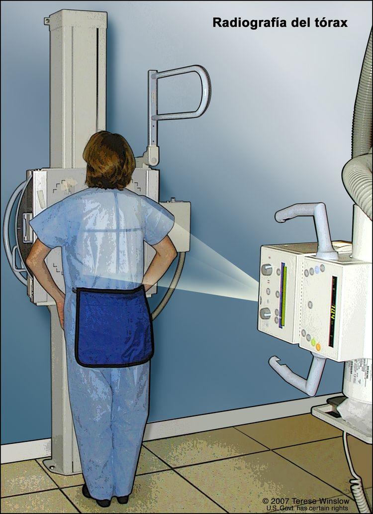 Radiografía del tórax. En el dibujo se muestra a una paciente de pie con la espalda hacia la máquina de rayos-X. Las radiografías se utilizan para tomar imágenes de los órganos y huesos del tórax. Los rayos X pasan a través del paciente y se plasman en una película.