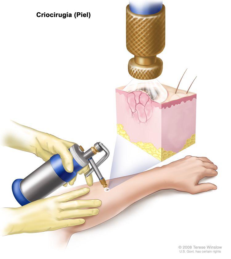 Criocirugía; el dibujo muestra un instrumento con una boquilla que se sostiene sobre un área anormal en la parte inferior del brazo de un paciente. El recuadro muestra una pulverización de nitrógeno líquido o de dióxido de carbono líquido que sale de la boquilla y cubre la lesión anormal. La congelación destruye la lesión.