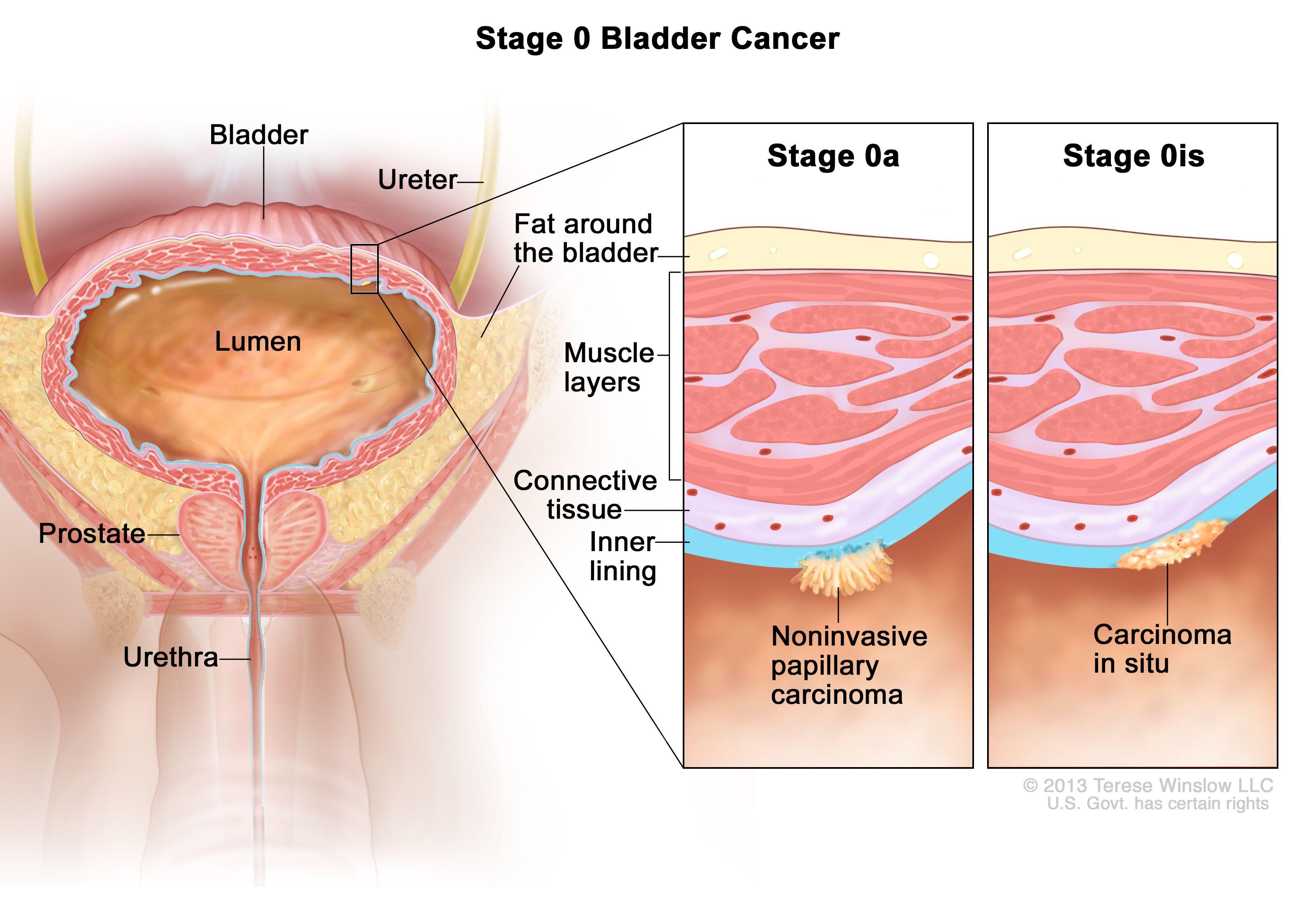 Етап 0 рак на пикочния мехур