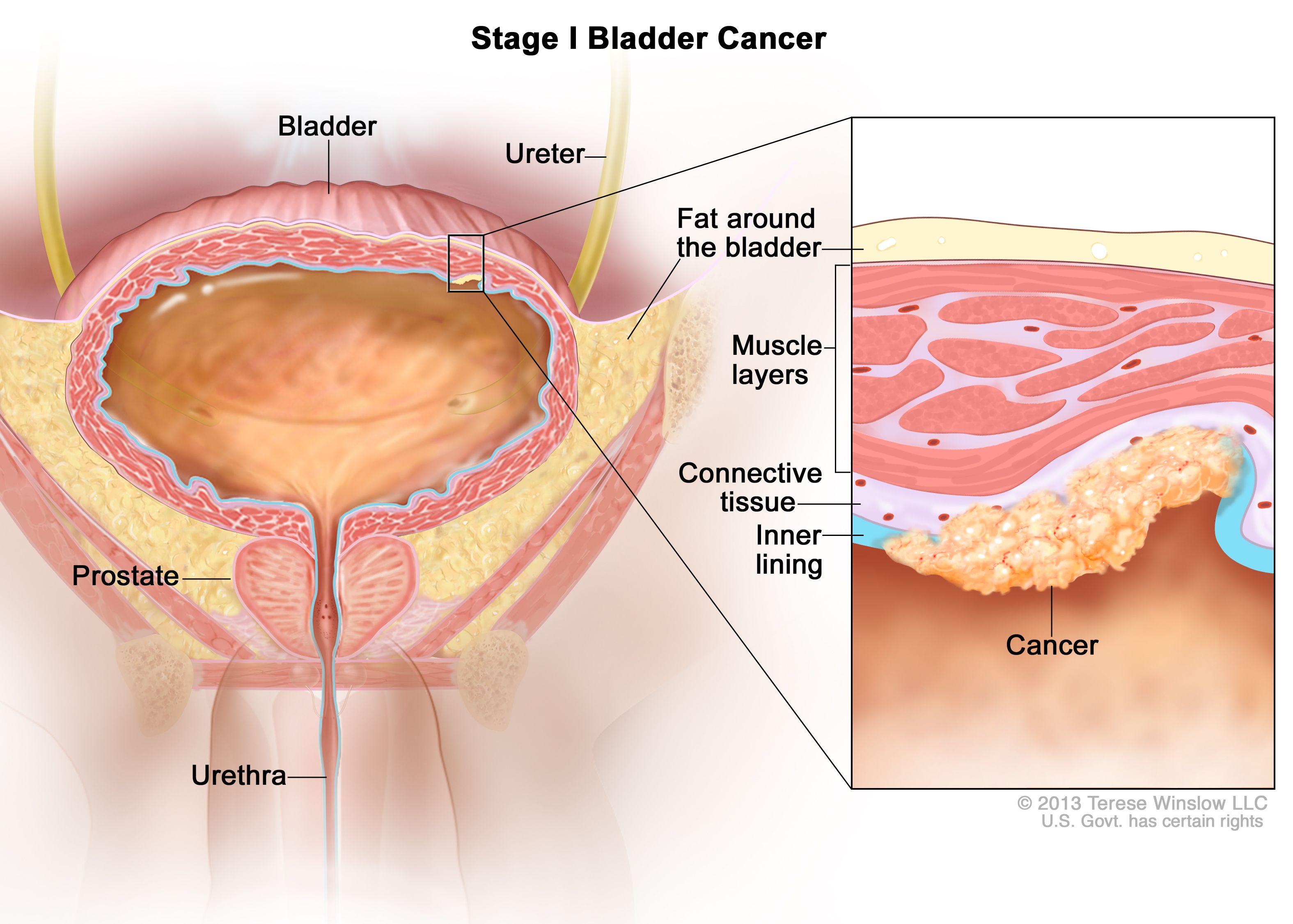 Рак на пикочния мехур в I етап