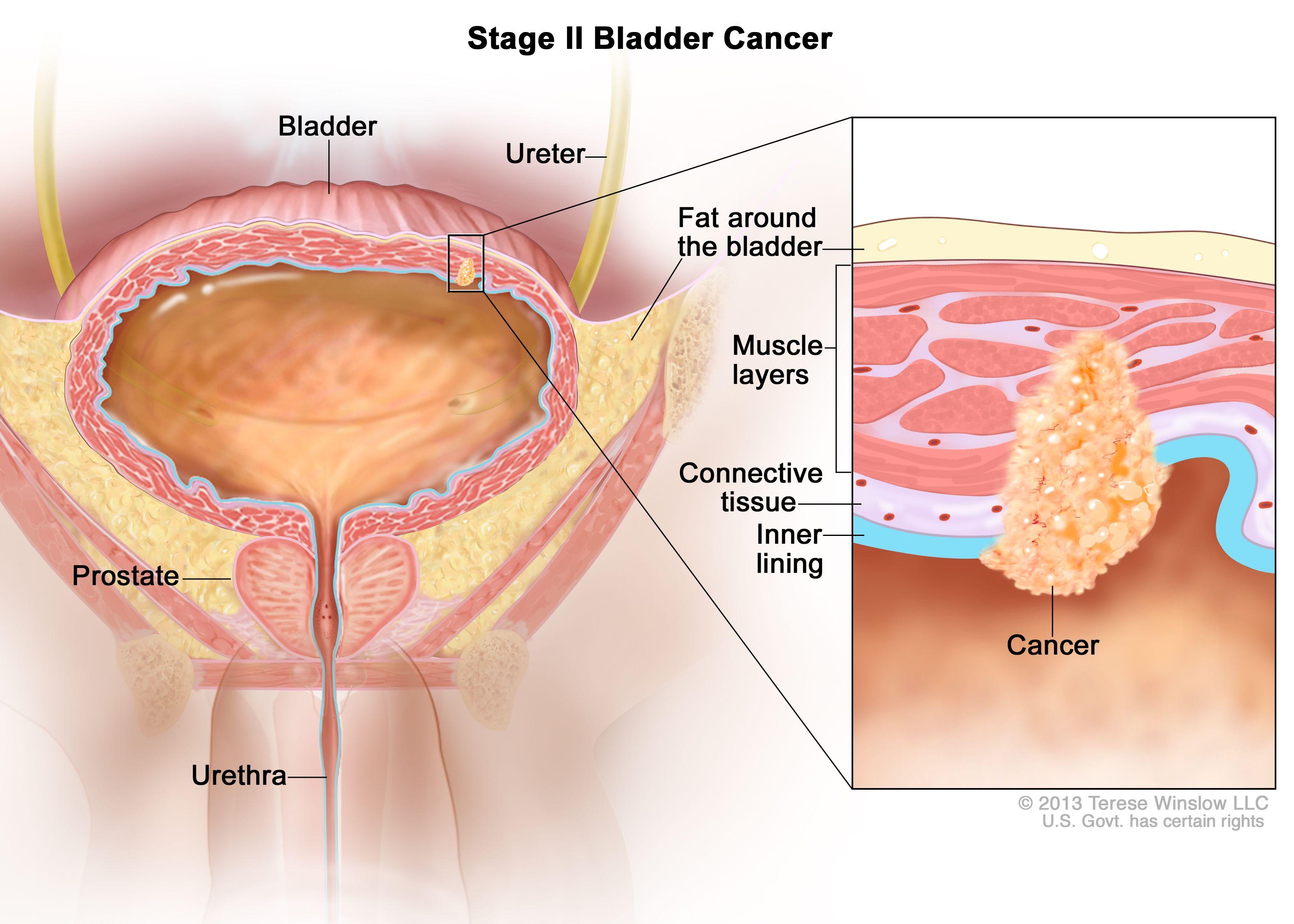 Рак на пикочния мехур в етап II
