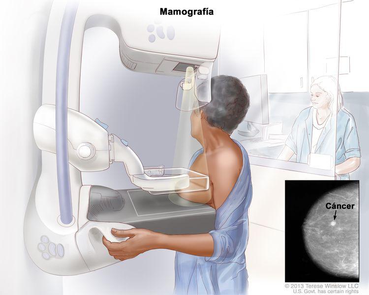 Mamografía; se presiona la mama izquierda entre dos placas. Se usa una máquina de rayos-X para tomar imágenes de la mama. Un recuadro muestra la imagen de rayos-X con una flecha que apunta al tejido anormal.