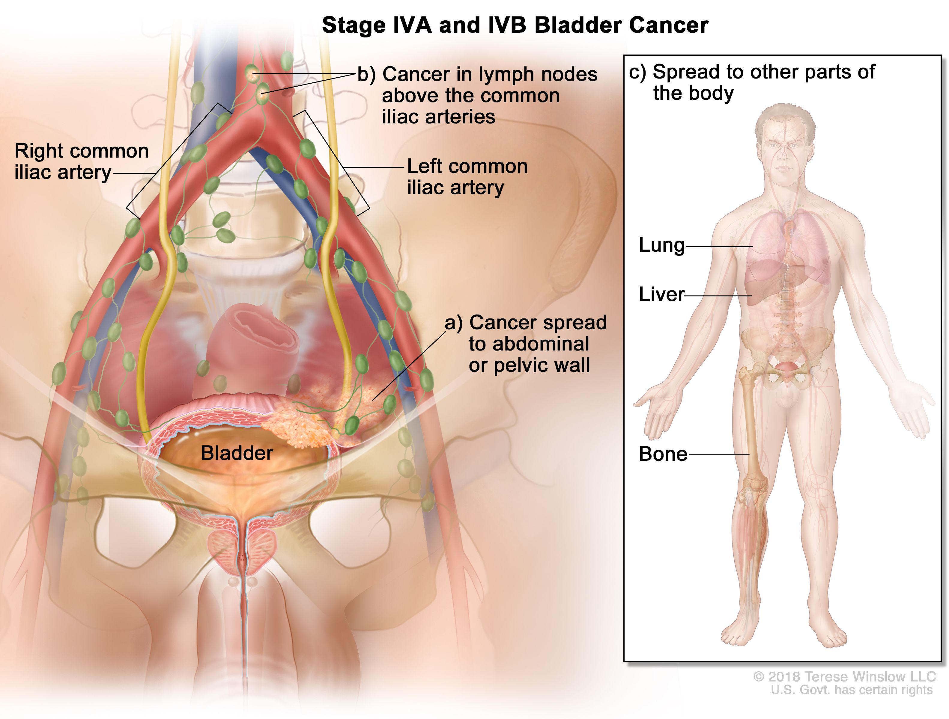 Bladder Cancer Treatment Bladder Cancer Pictures Signs Symptoms To Better Understand Diagnosis Cleveland Oh University Hospitals