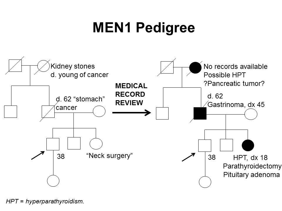 4世代の間で有害なMEN1突然変異と父系での伝達が認められる家系(pedigree) の特徴の一部を示す家系図。罹患していない発端者の男性には、罹患している姉(頸部手術を自己報告し、医療記録の検討により、18歳時の副甲状腺機能亢進症の診断と、副甲状腺切除および下垂体腺腫が確認された)、父(胃がんを自己報告し、医療記録の検討により、45歳時のガストリノーマの診断が確認された)、父方の祖母(副甲状腺機能亢進症および/または膵腫瘍が疑われる)がいることが示されている。