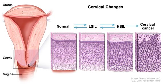 HPV și cancerul de col uterin | p5net.ro, Papillomavirus hpv cin 1