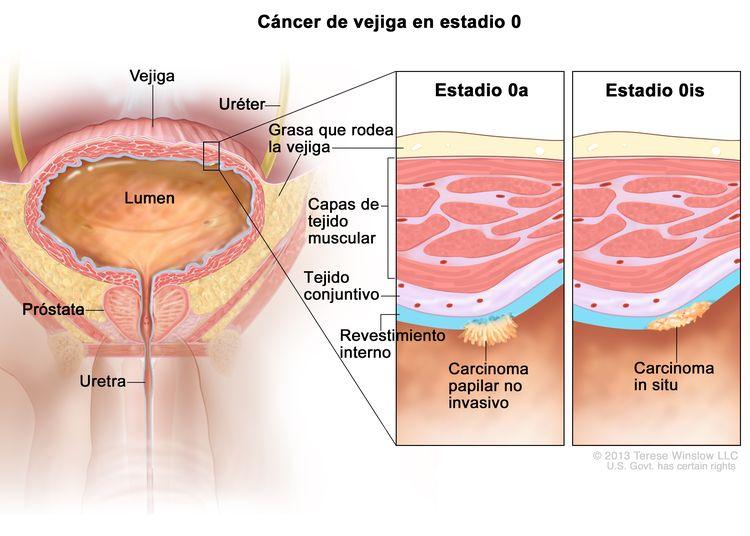 Cáncer de vejiga en estadio 0; en la imagen se observan la vejiga, el uréter, la próstata y la uretra. En el primer recuadro se muestra el estadio 0a (también se llama carcinoma papilar no invasivo) en el revestimiento interno de la vejiga. En el segundo recuadro se muestra el estadio 0is (también se llama carcinoma in situ) en el revestimiento interno de la vejiga. También se observan las capas del tejido conjuntivo y de tejido muscular de la vejiga y la capa de grasa alrededor de la vejiga.