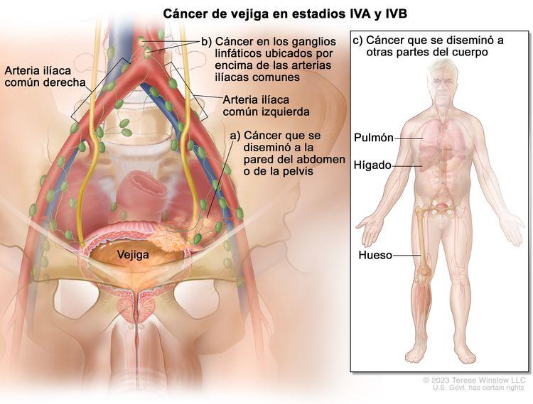 Cáncer de vejiga en estadios IVA y IVB; en la imagen se observa cáncer que se diseminó desde la vejiga a: a) la pared abdominal o pélvica y b) los ganglios linfáticos ubicados por encima de las arterias ilíacas comunes. También se observa cáncer que se diseminó a: c) otras partes del cuerpo como el pulmón, el hígado y el hueso.