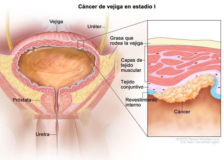 Cáncer de vejiga en estadio l; en la imagen se observan la vejiga, el uréter, la próstata y la uretra. En el recuadro se muestra el cáncer en el revestimiento interno de la vejiga y en la capa del tejido conjuntivo de al lado. También se observan las capas de músculo de la vejiga y la capa de grasa alrededor de la vejiga.