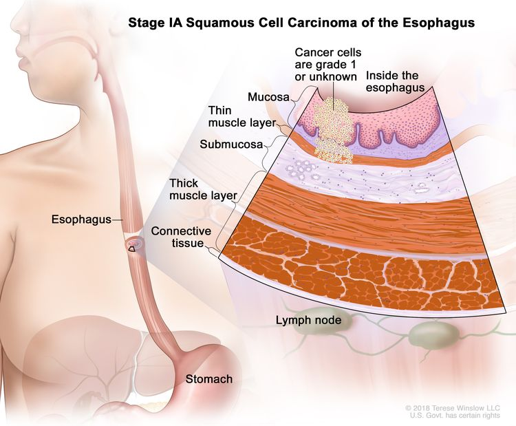 Stage IA squamous cell carcinoma of the esophagus; drawing shows the esophagus and stomach. An inset shows grade 1 cancer cells or cancer cells of an unknown grade in the mucosa layer and thin muscle layer of the esophagus wall. Also shown are the submucosa layer, thick muscle layer, and connective tissue layer of the esophagus wall. The lymph nodes are also shown.