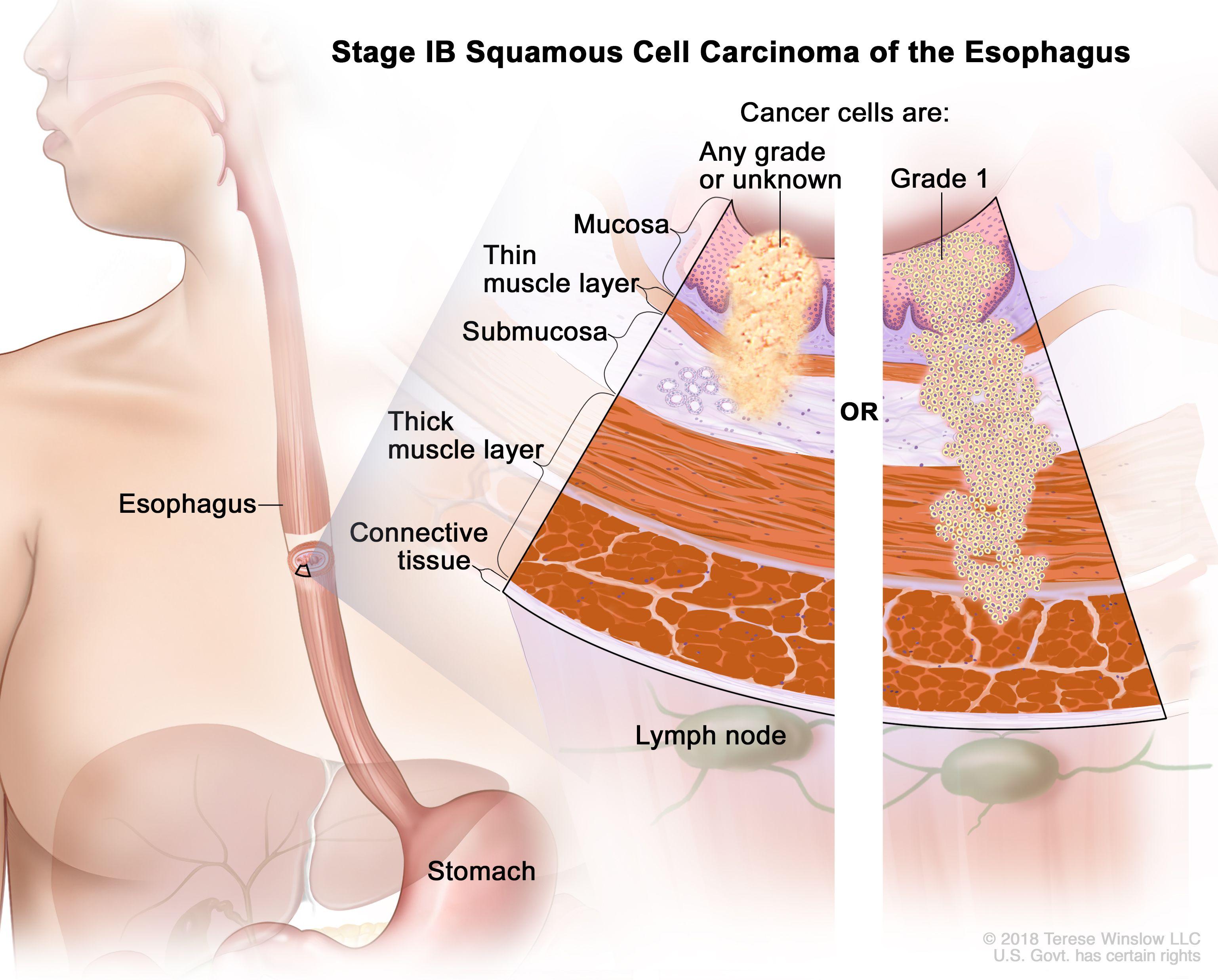 Етап IB плоскоклетъчен карцином на хранопровода