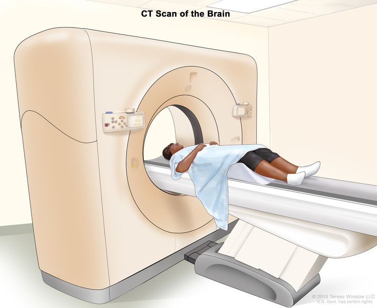 Computed tomography (CT) scan of the brain; drawing shows a patient lying on a table that slides through the CT scanner, which takes x-ray pictures of the brain.