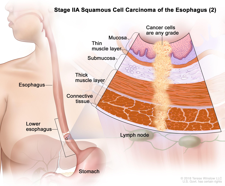 Етап IIA плоскоклетъчен карцином на хранопровода