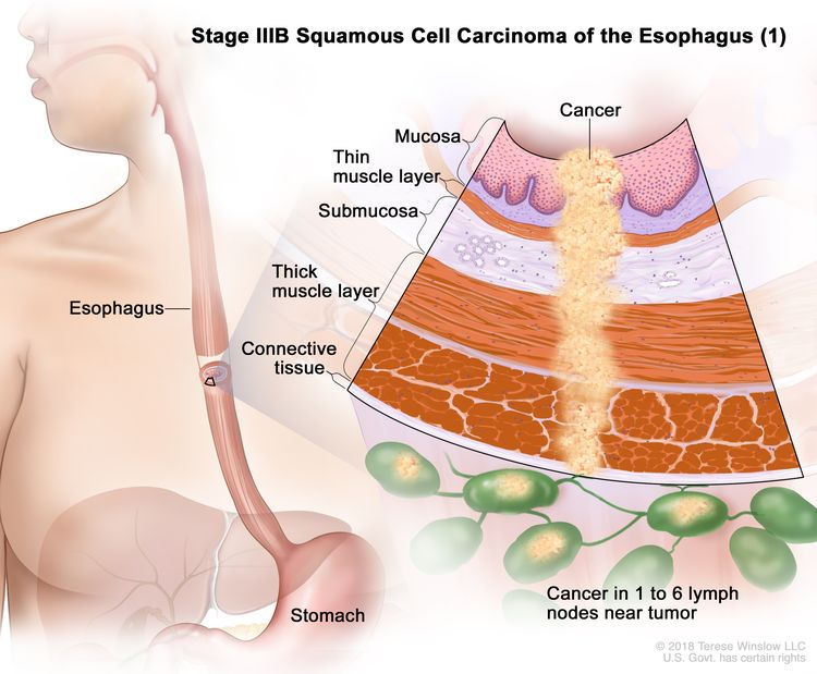 Stage IIIB squamous cell carcinoma of the esophagus (1); drawing shows the esophagus and stomach. An inset shows cancer cells in the mucosa layer, thin muscle layer, submucosa layer, thick muscle layer, and connective tissue layer of the esophagus wall and in 4 lymph nodes near the tumor.