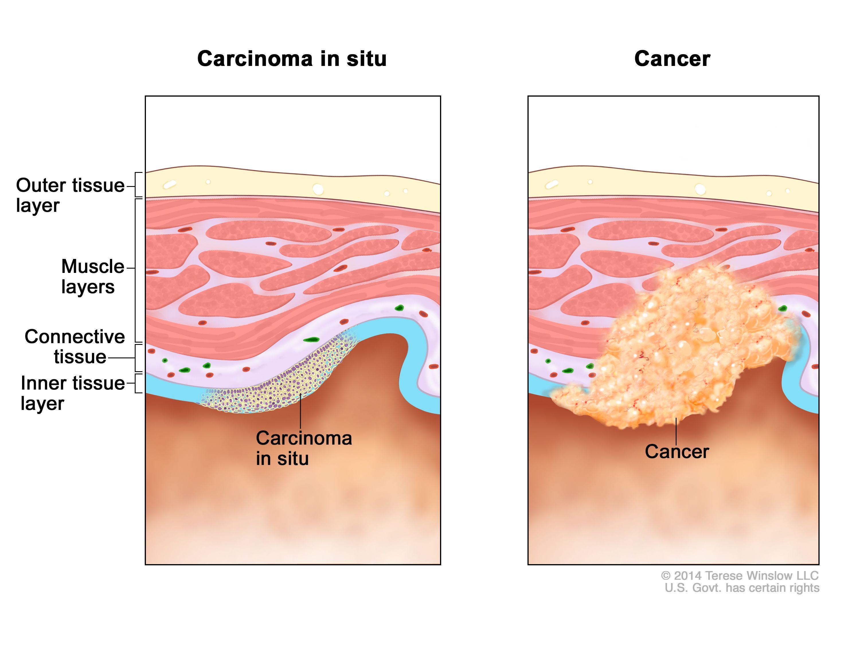 que es cancer in situ enterobiasis oxiuriasis)