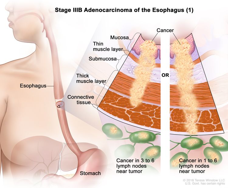 Stage IIIB adenocarcinoma of the esophagus (1); drawing shows the esophagus and stomach. An inset shows the layers of the esophagus wall: the mucosa layer, thin muscle layer, submucosa layer, thick muscle layer, and connective tissue layer. The left panel shows cancer in the mucosa layer, thin muscle layer, submucosa layer, and thick muscle layer and in 3 lymph nodes near the tumor. The right panel shows cancer in the mucosa layer, thin muscle layer, submucosa layer, thick muscle layer, and connective tissue layer and in 4 lymph nodes near the tumor.