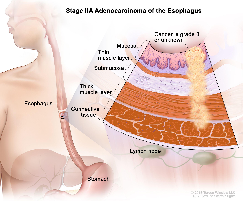Аденокарцином на стадий IIA на хранопровода