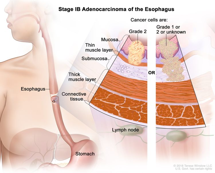 Stage IB adenocarcinoma of the esophagus; drawing shows the esophagus and stomach. A two-panel inset shows the layers of the esophagus wall: the mucosa layer, thin muscle layer, submucosa layer, thick muscle layer, and connective tissue layer. The lymph nodes are also shown. The left panel shows grade 2 cancer cells in the mucosa layer and thin muscle layer. The right panel shows cancer cells in the mucosa layer, thin muscle layer, and submucosa layer. The cancer cells are grade 1 or 2 or the grade is not known.
