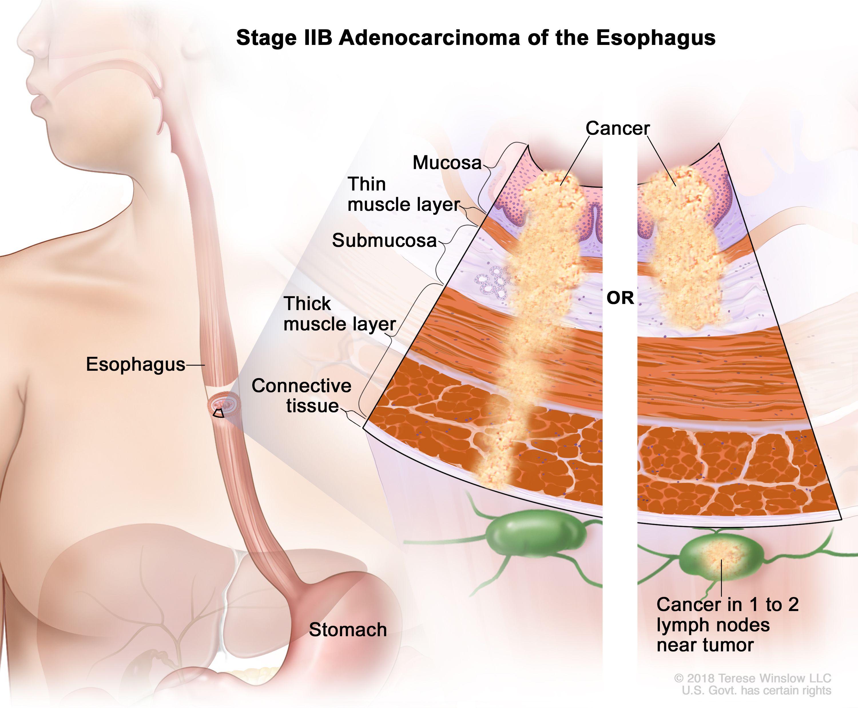 Аденокарцином на етап IIB на хранопровода