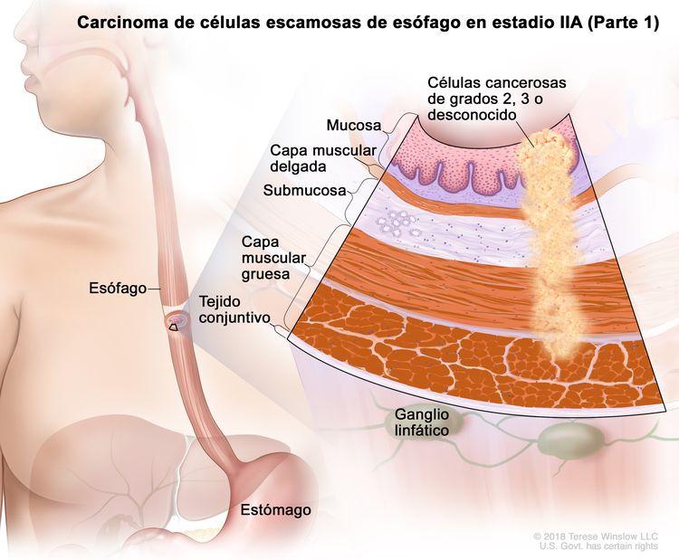 Carcinoma de células escamosas de esófago en estadio IIA (Parte 1). En la imagen se observan el esófago y el estómago. En una ampliación, se muestran células cancerosas en la mucosa, la capa muscular delgada, la submucosa y la capa muscular gruesa de la pared del esófago. Las células cancerosas son de grado 2, grado 3 o grado desconocido. También se muestran la capa de tejido conjuntivo de la pared del esófago y ganglios linfáticos.