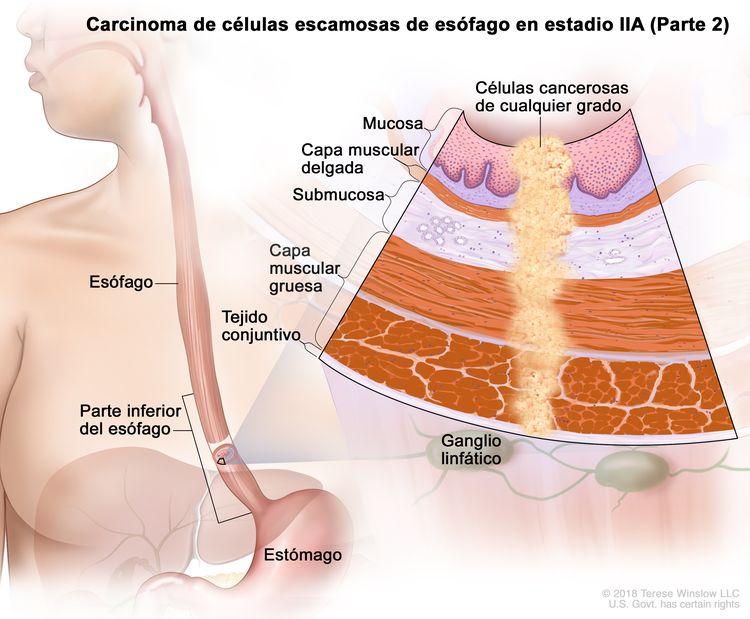 Carcinoma de células escamosas de esófago en estadio IIA (Parte 2). En la imagen se observan el esófago, incluso la parte inferior del esófago, y el estómago. En una ampliación, se muestran células cancerosas de cualquier grado en la mucosa, la capa muscular delgada, la submucosa, la capa muscular gruesa y el tejido conjuntivo de la pared de la parte inferior del esófago. También se muestran ganglios linfáticos.