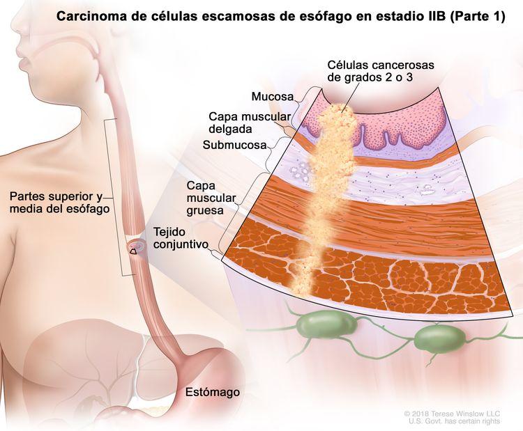 Carcinoma de células escamosas de esófago en estadio IIB (Parte 1). En la imagen se observan las partes superior y media del esófago, y el estómago. En una ampliación, se muestran células cancerosas en la mucosa, la capa muscular delgada, la submucosa, la capa muscular gruesa y el tejido conjuntivo de las partes superior y media de la pared del esófago. Las células cancerosas son de grados 2 o 3.