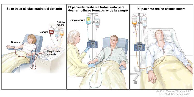 Trasplante de células madre. Se observan tres paneles con imágenes. Panel 1: extracción de células madre de un paciente o un donante. Se extrae sangre de una vena del brazo y esta pasa por una máquina que separa las células madre; la sangre que queda se devuelve al paciente por una vena del otro brazo. Panel 2: un proveedor de atención de la salud administra el tratamiento a un paciente para eliminar las células formadoras de la sangre. La quimioterapia se administra al paciente mediante un catéter en el pecho. Panel 3: el paciente recibe células madre a través de un catéter en el pecho.