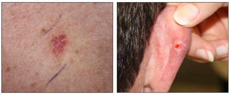 Las fotografías muestran una lesión de cáncer de piel que aparece de color rojizo oscuro y ligeramente abultada (panel izquierdo) y la parte trasera de la oreja de una persona con lesión cancerosa en la piel que luce como una llaga abierta con un anillo perlado (panel derecho).