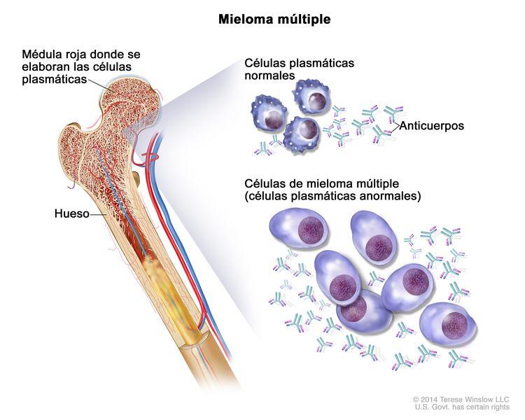 Mieloma múltiple; en la ilustración, se muestran células plasmáticas normales, células de mieloma múltiple (células plasmáticas anormales) y anticuerpos. También se muestra la médula roja en el hueso, en donde se elaboran las células plasmáticas.