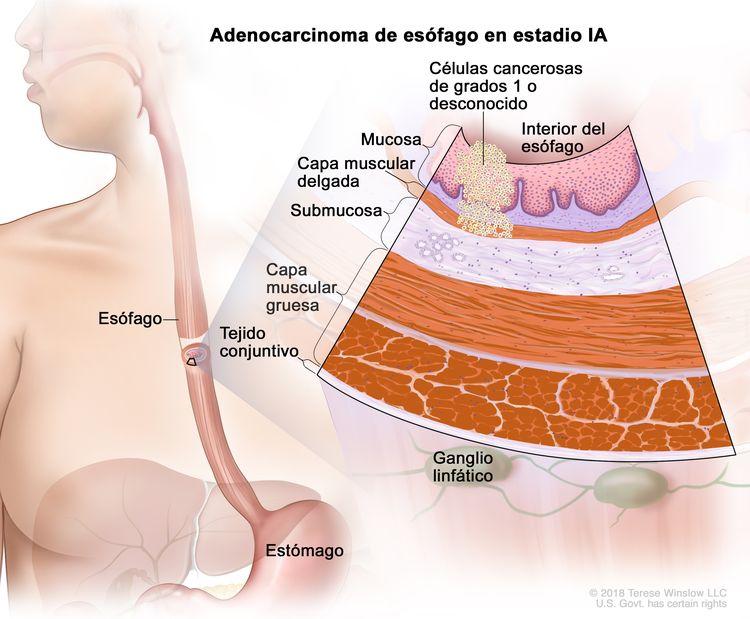 Adenocarcinoma de esófago en estadio IA. En la imagen se observan el esófago y el estómago. En una ampliación, se muestran células cancerosas en la mucosa y la capa muscular delgada de la pared del esófago. Las células cancerosas son de grado 1 o de grado desconocido. Además, se observan la submucosa, la capa muscular gruesa y el tejido conjuntivo de la pared del esófago. También se muestran ganglios linfáticos.