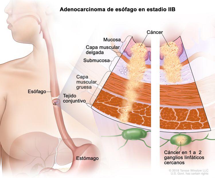 Adenocarcinoma de esófago en estadio IIB. En la imagen se observan el esófago y el estómago. En una ampliación con dos paneles, se muestran las capas de la pared del esófago: la mucosa, la capa muscular delgada, la submucosa, la capa muscular gruesa y el tejido conjuntivo. En el panel izquierdo, se observa cáncer en la mucosa, la capa muscular delgada, la submucosa, la capa muscular gruesa y el tejido conjuntivo. En el panel derecho, se observa cáncer en la mucosa, la capa muscular delgada, la submucosa y en 1 ganglio linfático cercano.