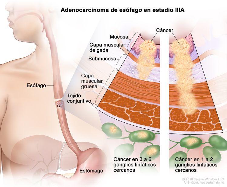 Adenocarcinoma de esófago en estadio IIIA. En la imagen se observan el esófago y el estómago. En una ampliación con dos paneles, se muestran las capas de la pared del esófago: la mucosa, la capa muscular delgada, la submucosa, la capa muscular gruesa y el tejido conjuntivo. En el panel izquierdo, se observa cáncer en la mucosa, la capa muscular delgada, la submucosa y en 3 ganglios linfáticos cercanos. En el panel derecho, se observa cáncer en la mucosa, la capa muscular delgada, la submucosa, la capa muscular gruesa y en 1 ganglio linfático cercano.