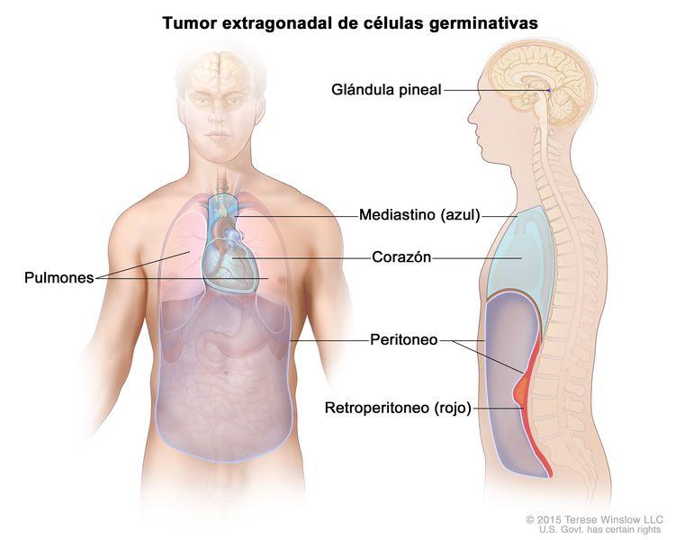 Tumor extragonadal de células germinativas; la imagen muestra las partes del cuerpo donde los tumores de células germinativas se pueden formar, incluso la glándula pineal del cerebro, el mediastino (área entre los pulmones, incluso el corazón) y el retroperitoneo (area detrás del peritoneo). También se muestra el corazón y el peritoneo.