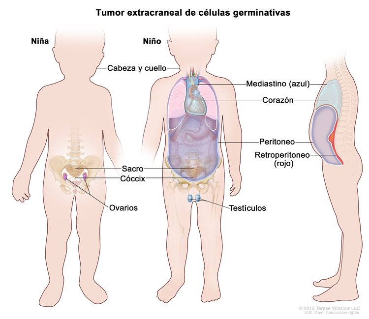 Tumor extracraneal de células germinativas. En la imagen se observan las partes del cuerpo adonde se pueden formar tumores extracraneales de células germinativas, que incluyen: la cabeza y el cuello, el mediastino (área entre los pulmones, que se muestra en azul), el retroperitoneo (área detrás de los órganos abdominales, que se muestra en rojo), el sacro, el cóccix, los testículos (en los niños) y los ovarios (en las niñas). También se muestran el corazón y el peritoneo.