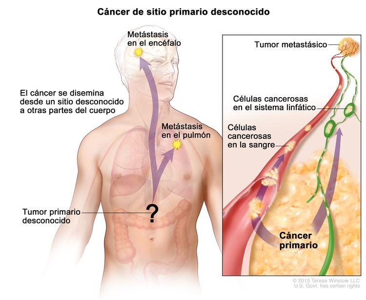 Carcinoma de sitio primario desconocido; la imagen muestra un tumor primario que se diseminó desde un sitio desconocido a otras partes del cuerpo (el pumón y el cerebro). En un recuadro, se observan las células cancerosas que se diseminan desde el cáncer primario, a través de los sistemas sanguíneo y linfático, a otra parte del cuerpo donde se formó un tumor metastásico.
