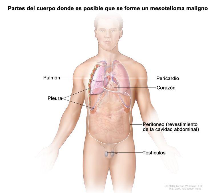 Mesotelioma maligno. En el dibujo se muestran las partes del cuerpo dónde el mesotelioma maligno se puede formar, como los pulmones, el corazón, la pleura, la cavidad abdominal y los testículos.