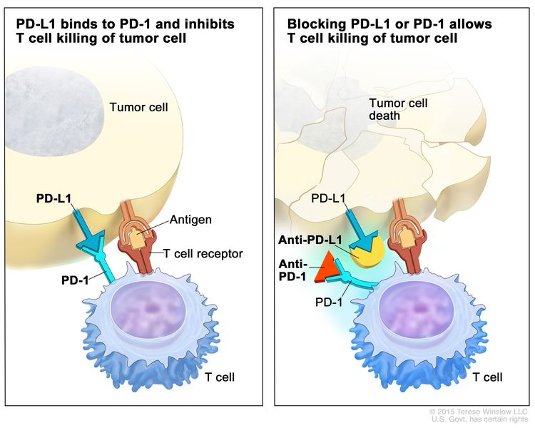 Immune checkpoint inhibitor; the panel on the left shows the binding of proteins PD-L1 (on the tumor cell) to PD-1 (on the T cell), which keeps T cells from killing tumor cells in the body. Also shown are a tumor cell antigen and T cell receptor. The panel on the right shows immune checkpoint inhibitors (anti-PD-L1 and anti-PD-1) blocking the binding of PD-L1 to PD-1, which allows the T cells to kill tumor cells.