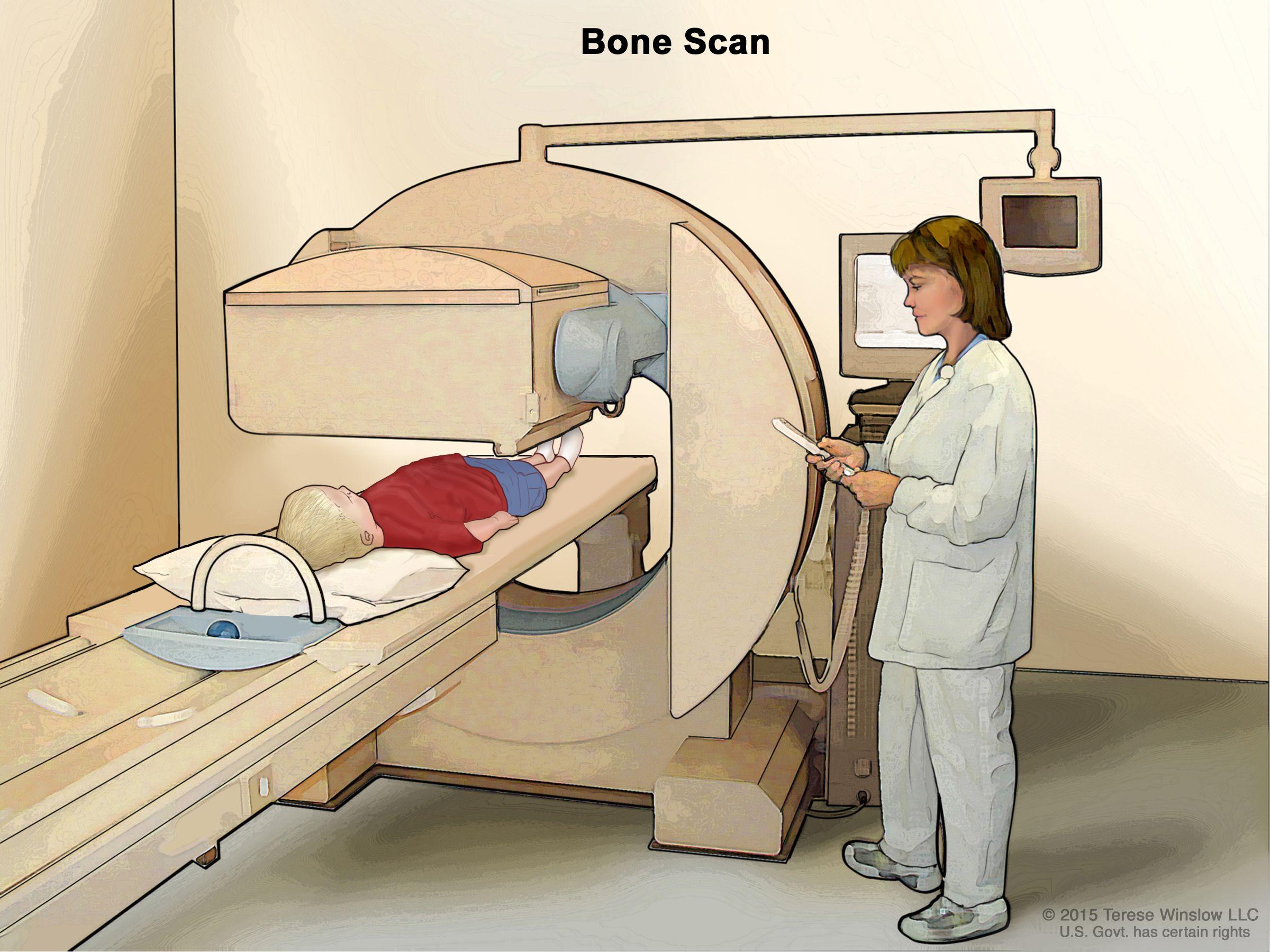 Сканиране на костите
