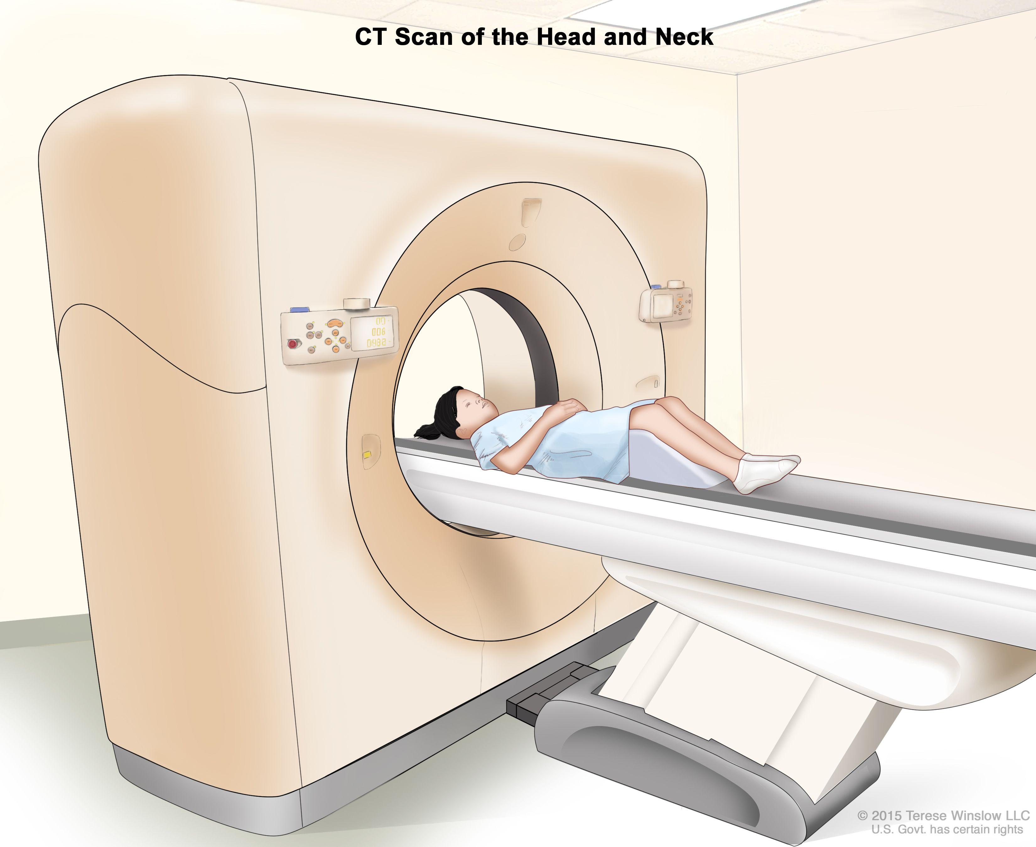 Компютърна томография (КТ) на главата и шията