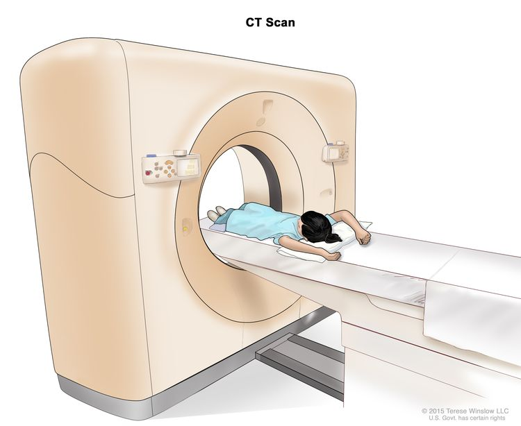 Computed tomography (CT) scan of the abdomen; drawing shows a child lying on a table that slides through the CT scanner, which takes x-ray pictures of the inside of the abdomen.