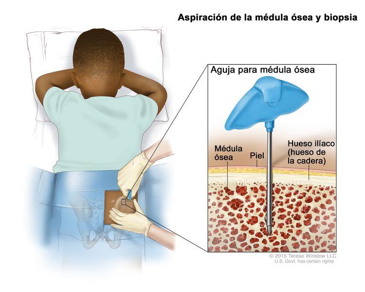 Aspiración de la médula ósea y biopsia; el dibujo muestra a un niño acostado boca abajo en una camilla y una aguja para la médula ósea que se inserta en el hueso ilíaco (hueso de la cadera) derecho. El recuadro muestra la aguja para la médula ósea que se inserta a través de la piel hasta la médula ósea del hueso de la cadera.