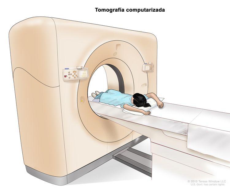 Tomografía computarizada (TC) del abdomen; en la imagen se observa a un niño en una camilla que se desliza al escáner de TC, que toma imágenes radiográficas del interior del cuerpo.