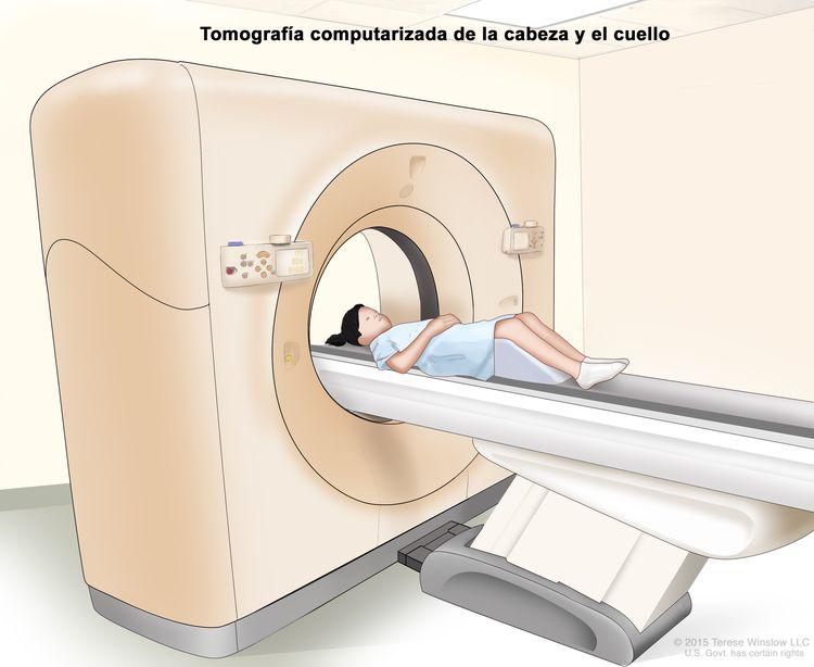 Tomografía computarizada (TC) de la cabeza y el cuello; en el dibujo se muestra un niño acostado sobre una camilla que se desliza a través de un escáner de TC que toma imágenes radiográficas del interior de la cabeza y el cuello.