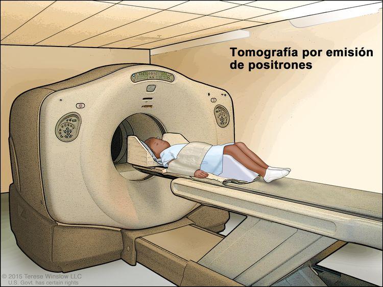 Tomografía por emisión de positrones (TEP); en la imagen se observa un niño acostado en una camilla que se desliza a través del escáner de TEP.
