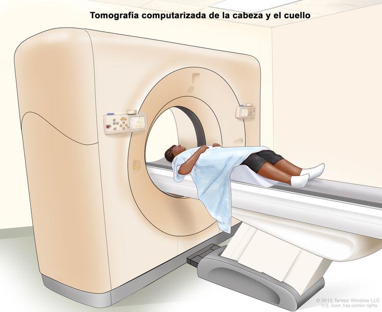 Tomografía computarizada (TC) de la cabeza y el cuello; en el dibujo se muestra un paciente acostado sobre una camilla que se desliza a través de un escáner de TC que toma imágenes radiográficas del interior de la cabeza y el cuello.