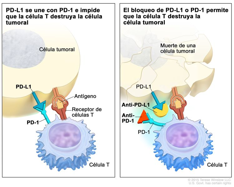 Inhibidor de puntos de control inmunitario; en el panel de la izquierda se muestra la unión de la proteína PD-L1 (en la célula tumoral) con la proteína PD-1 (en la célula T), lo que impide que las células T destruyan las células tumorales del cuerpo. También se muestra un antígeno de una célula tumoral y un receptor de una célula T. En el panel de la derecha, se muestran inhibidores de puntos de control inmunitario (anti-PD-L1 y anti-PD-1) que impiden la unión de PD-L1 con PD-1, lo que permite que las células T destruyan las células tumorales.