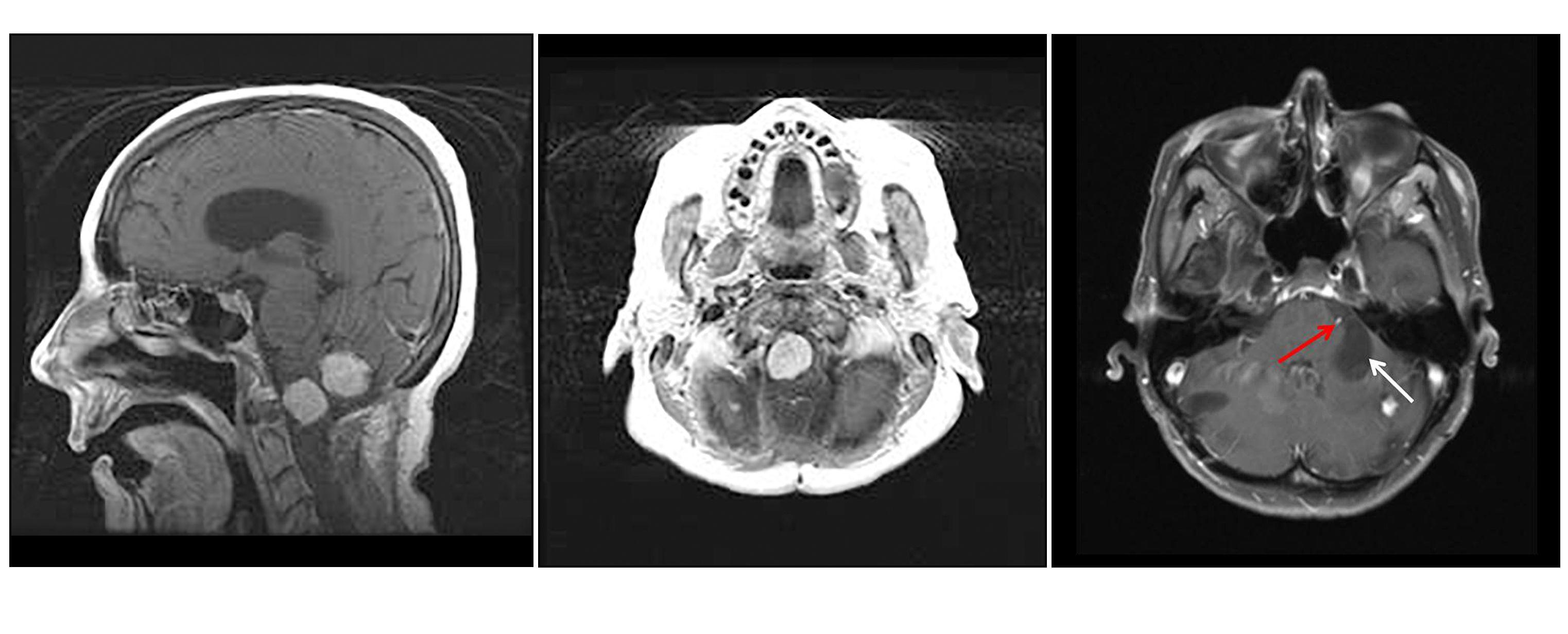 3つの図が、2つの著明に薄い色の脳幹および小脳病変の矢状方向像(左図)、著明な脳幹病変(中央図)、および嚢胞性成分を示す大きな濃色領域を伴う小脳病変の軸方向像(左図)を示している。